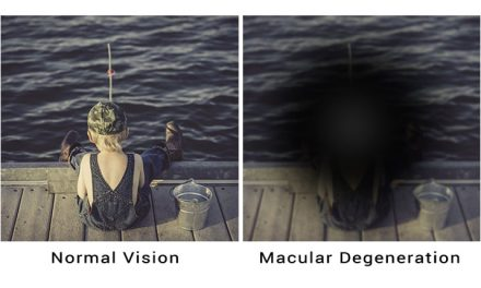 KEEPING SIGHT OF AGE-RELATED MACULAR DEGENERATION
